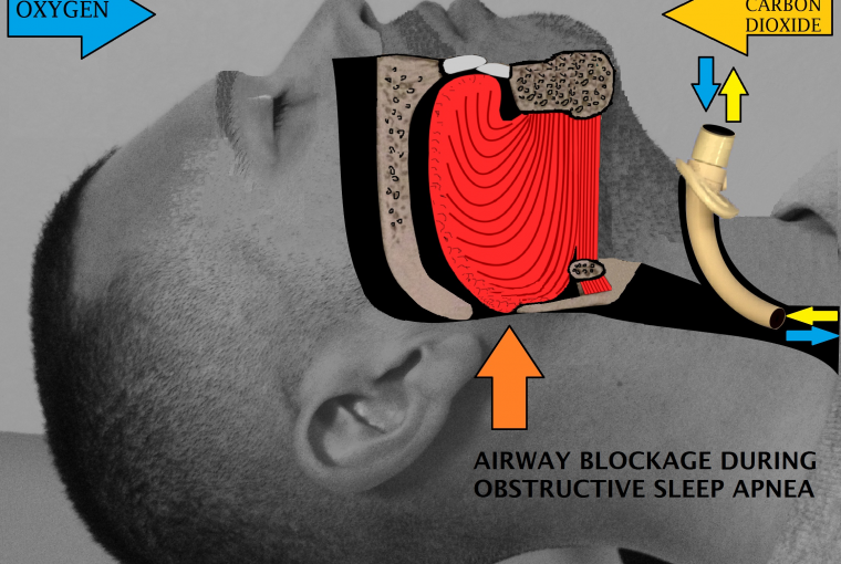 How to Avoid Snoring While Sleeping The Best 6 Ways