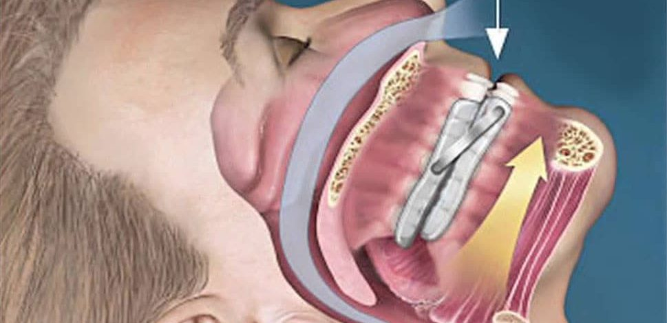 Guarding Your Mouth With a Sleep Apnea Mouthpiece